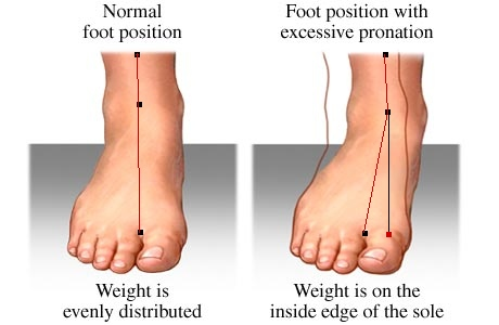 Check if your feet are aligned correctly